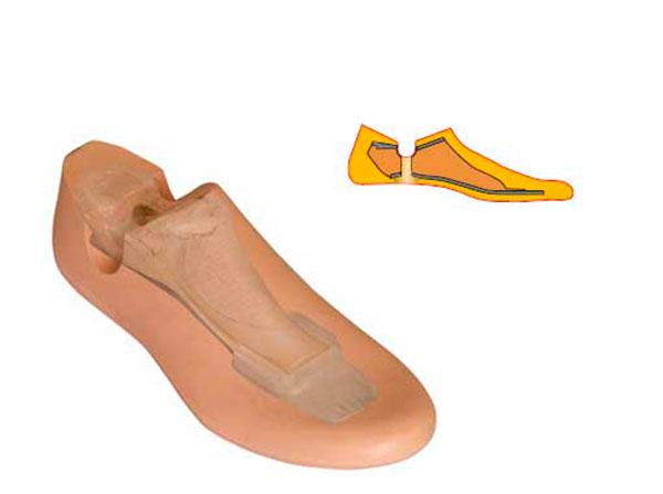 Модель 611 - мужской протез стопы