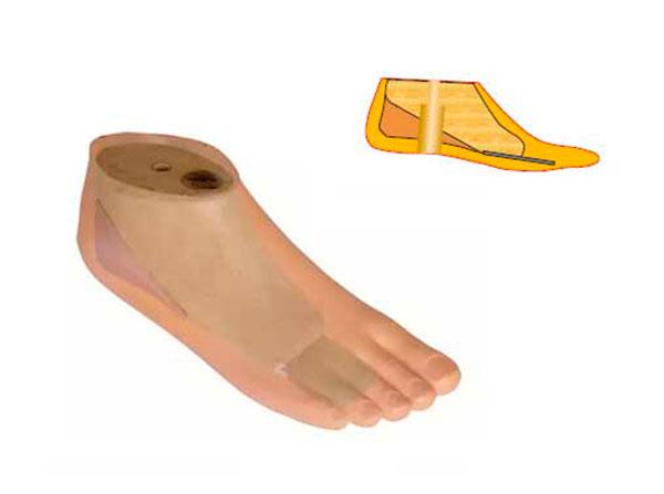 Модель 615 О - мужской протез стопы типа SACH