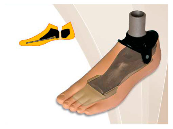 Модель 711 С - мужской протез стопы с угленаполненным полимером