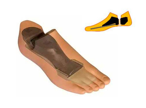 Модель 711 - мужской протез стопы с угленаполненным полимером