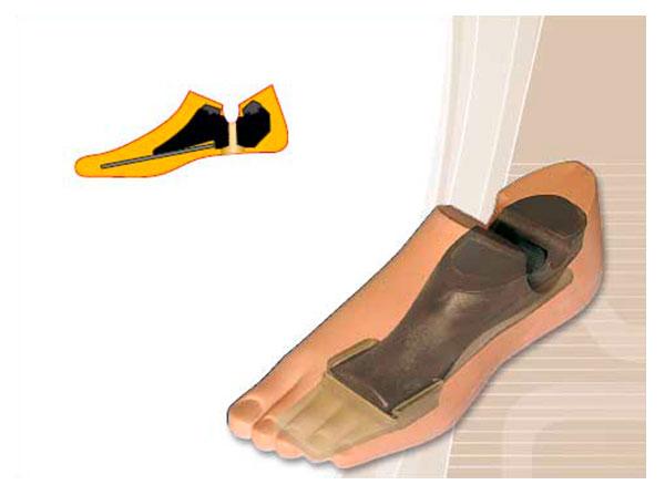 Модель 712 - женский протез стопы с угленаполненным полимером