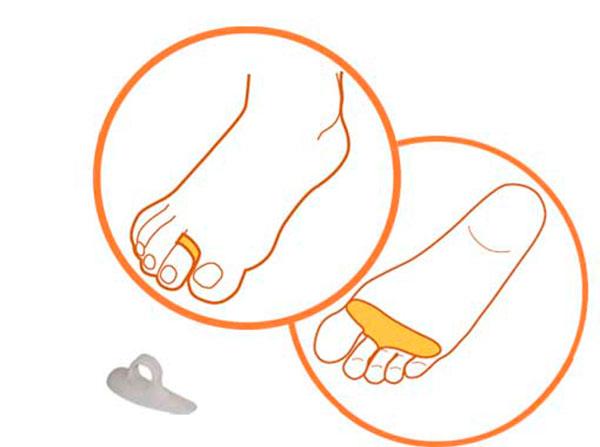 Модель 831 - корригирующее приспособление для плюсневых костей пальцев стопы