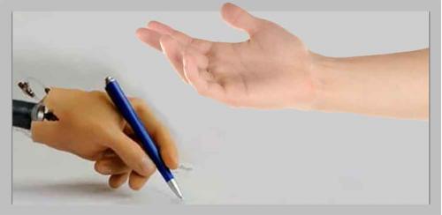 Протезы рук