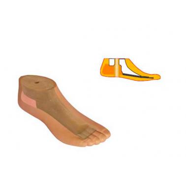 Модель 567 - мужской протез стопы типа SACH